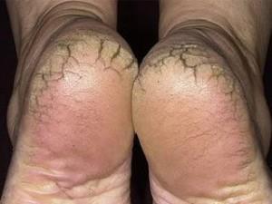 footFoot sole and base of toe , dry, coarse, rough, chapped , Padadari in Ayurveda.
