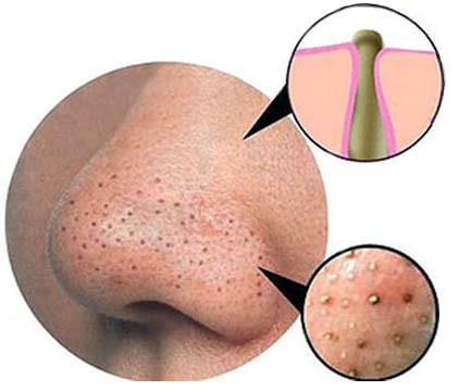 get rid of blackheads and whiteheads,home remedy
