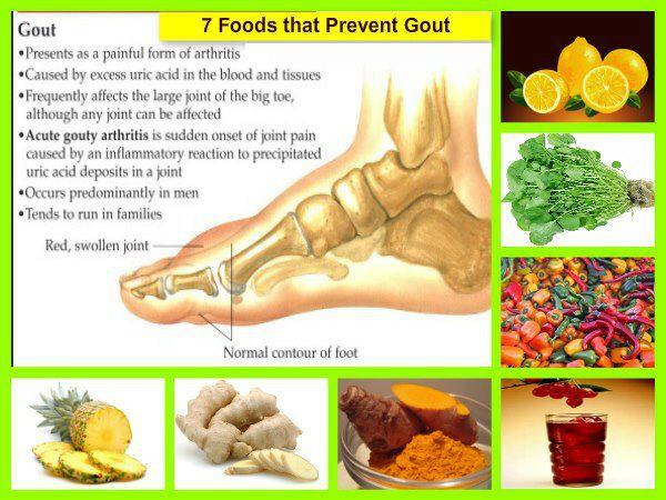 7 Foods that Prevent Gout | Daily Inspirations for Healthy ...