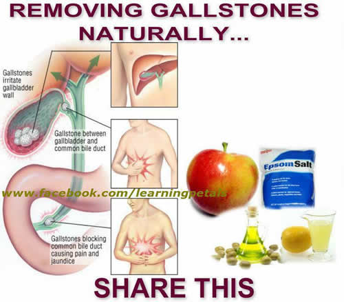 REMOVING GALLSTONES NATURALLY