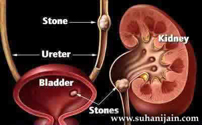 Home Remedies,herbs, for Treating Kidney stones,symptoms
