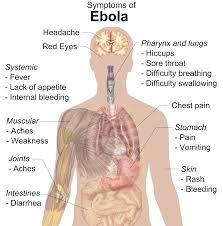 Ebola Virus Facts – Causes, Symptoms, Diagnosis, Treatment, and Prevention