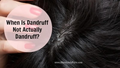 How to get Ride of Dandruff,remedies for dandruff