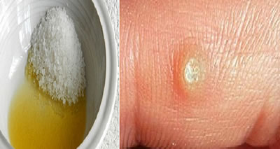 home remedy for wart