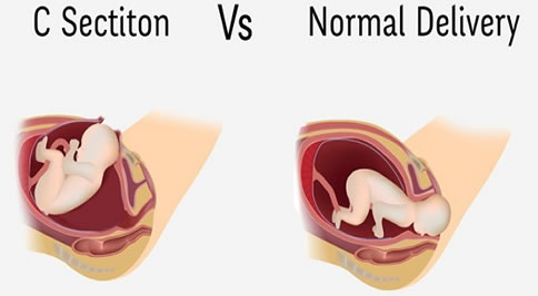 C-Sections vs normal delivery